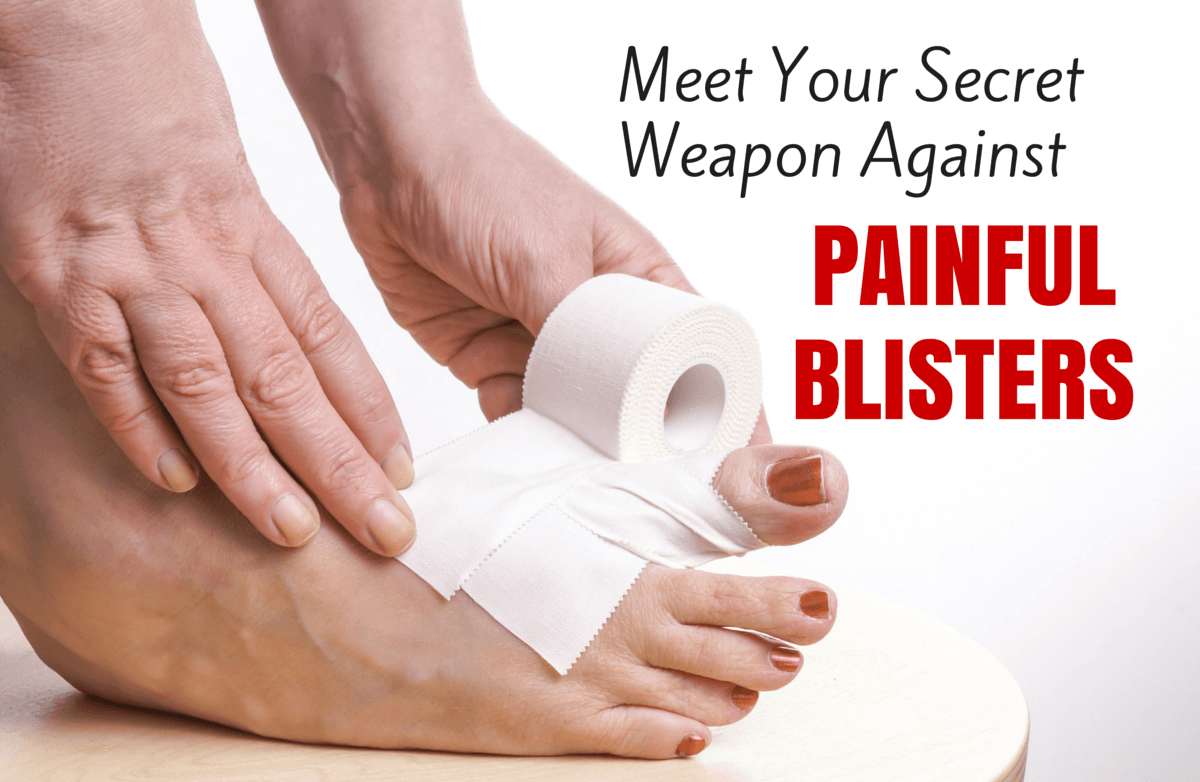 A Cheap Cure for Blisters Could Be in Your Junk Drawer