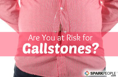 Gallstones Linked to Gut Circumference